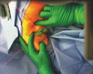 augmented reality to aid surgery